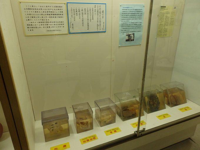 【閲覧注意】衝撃の人体標本!創設者・森本氏の臓器